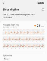 Screenshot_20210205-154956_Samsung Health Monitor_43212.jpg